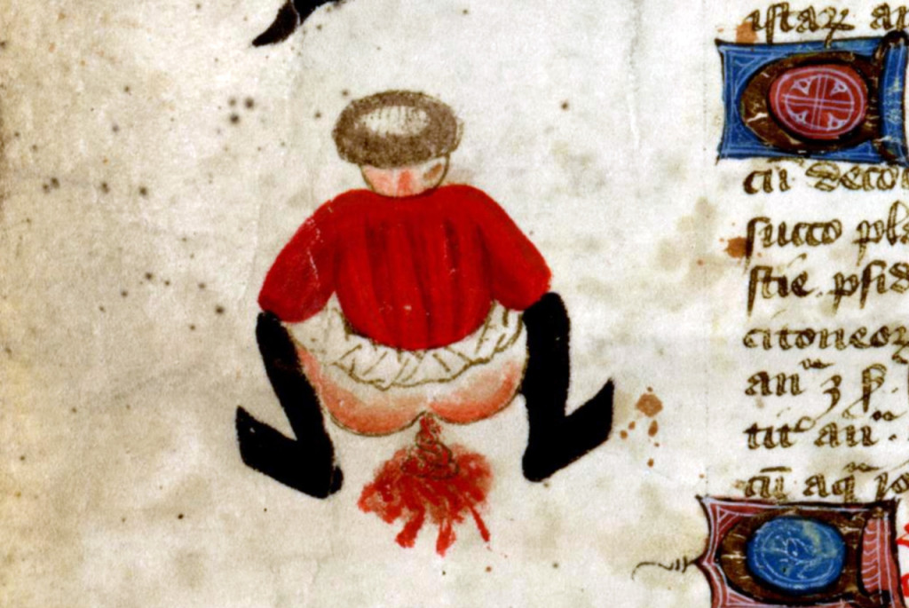 It's just a shame, that's all. (John Arderne, circa 1425)